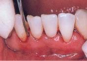 痛みをともなう場合は、麻酔をしてからおこないます いちどにできるのは4~6歯に限られています